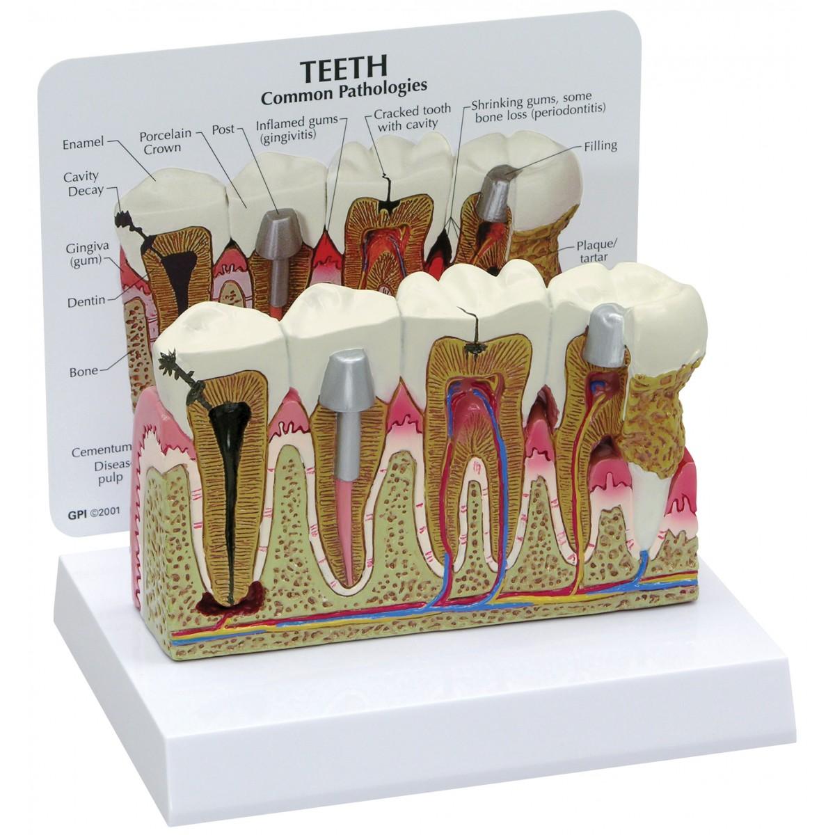 Teeth With Common Pathologies Dental Models Human Anatomy Biology