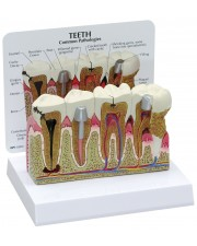 Teeth with Common Pathologies
