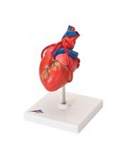 3B Class Heart w/Bypass