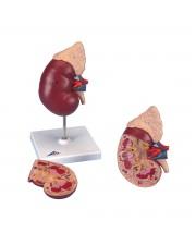 3B Kidney w/Adrenal Gland